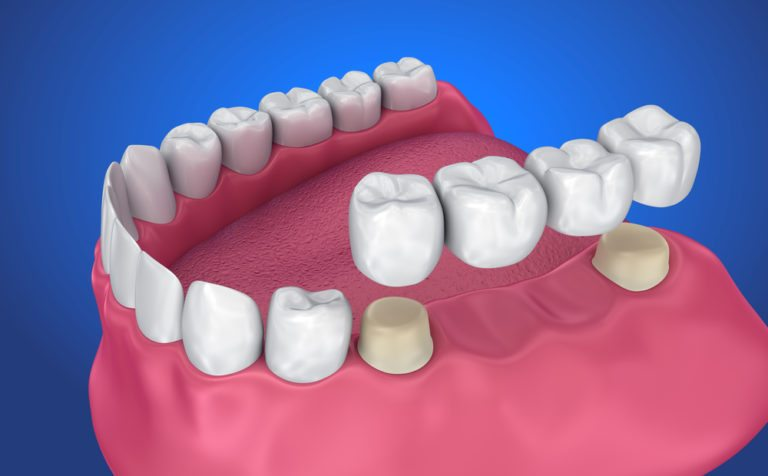 Dental-crown-and-Bridge-768x476