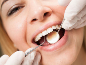 dental-oral-health-what-happens-during-a-tooth-cleaning_thumb